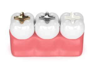 Composite vs amalgam fillings