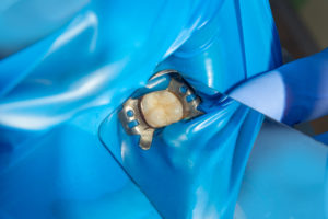 Isolated tooth getting a composite filling