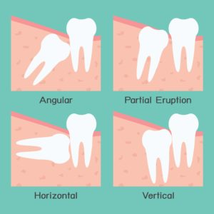 Diagram showing different types of wisdom teeth impactions