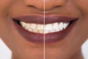 Before and after teeth whitening results