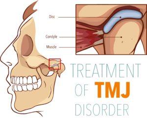 Diagram showing TMJ structures